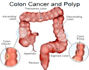 Colon Cancer - The Murderer of the Digestive System!