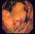 Colon Cancer Risk. 5 Factors!