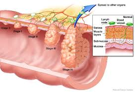 """Pathophysiology Of Colon Cancer"""