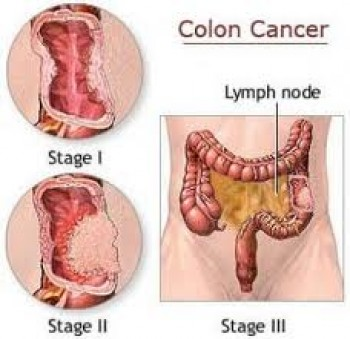 Stage 3 Colon Cancer, Indications!